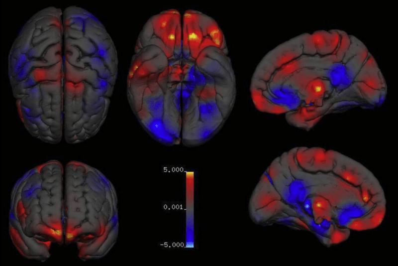Есть ли «критическая» разница между мужским и женским мозгом? Наука ставит точку